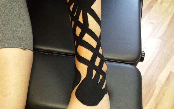 Ankle sprain with Kinesio Tape to help with swelling and bruising
