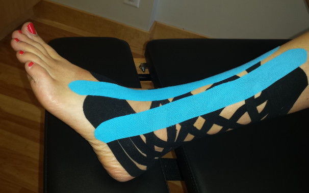 High Ankle Sprain with K-Tape to reduce swelling and support in addition to walking boot.